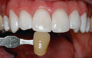 KöR Whitening was ranked highest as the most effective, reliable way to whiten your teeth permanently,