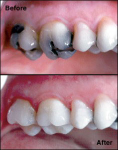 Dental inlays and onlays are a cosmetic dentistry procedure that is used to restore a decayed or damaged tooth to its original condition and can actually strengthen it