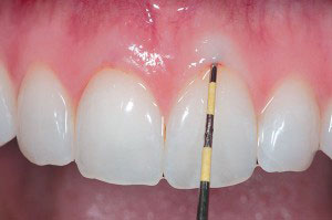Gingival Mask is a treatment for the gum disease