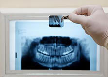 Leaders in office-based oral surgery and implants by concentrating on what we do best