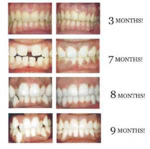 Fastbraces is Fast!! Treatment is generally completed in less than 12 months