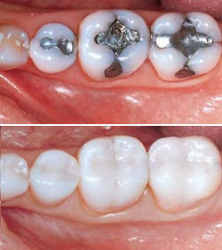 Inlays and onlays can be created using gold, porcelain, or a composite resin colored to match your natural tooth