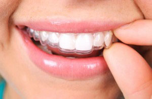 Invisalign straightens your teeth, not with brackets or wires, but with a series of clear,