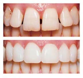 Once in place, porcelain veneers look and feel completely natural, and they can last a lifetime