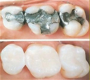 The two main kinds of dental fillings are direct and indirect fillings