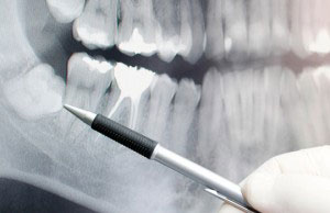 Wisdom Teeth Extraction should only be performed by dental professionals with proper training and experience