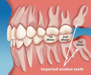 No one can predict which impacted tooth will cause problems