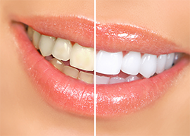 Cosmetic dentistry by San Ramon cosmetic Dentist Dr. Mohammad Khandaqji is an Art and a Science
